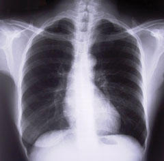 Lungs_StockPhoto